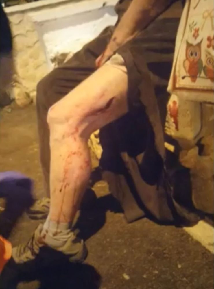 פציעה עקב תקיפת חזיר - חזיר בר תקף גבר ברחוב זרובבל פינת מוריה בחיפה (צילום: מתוך פרסומי עיריית חיפה)