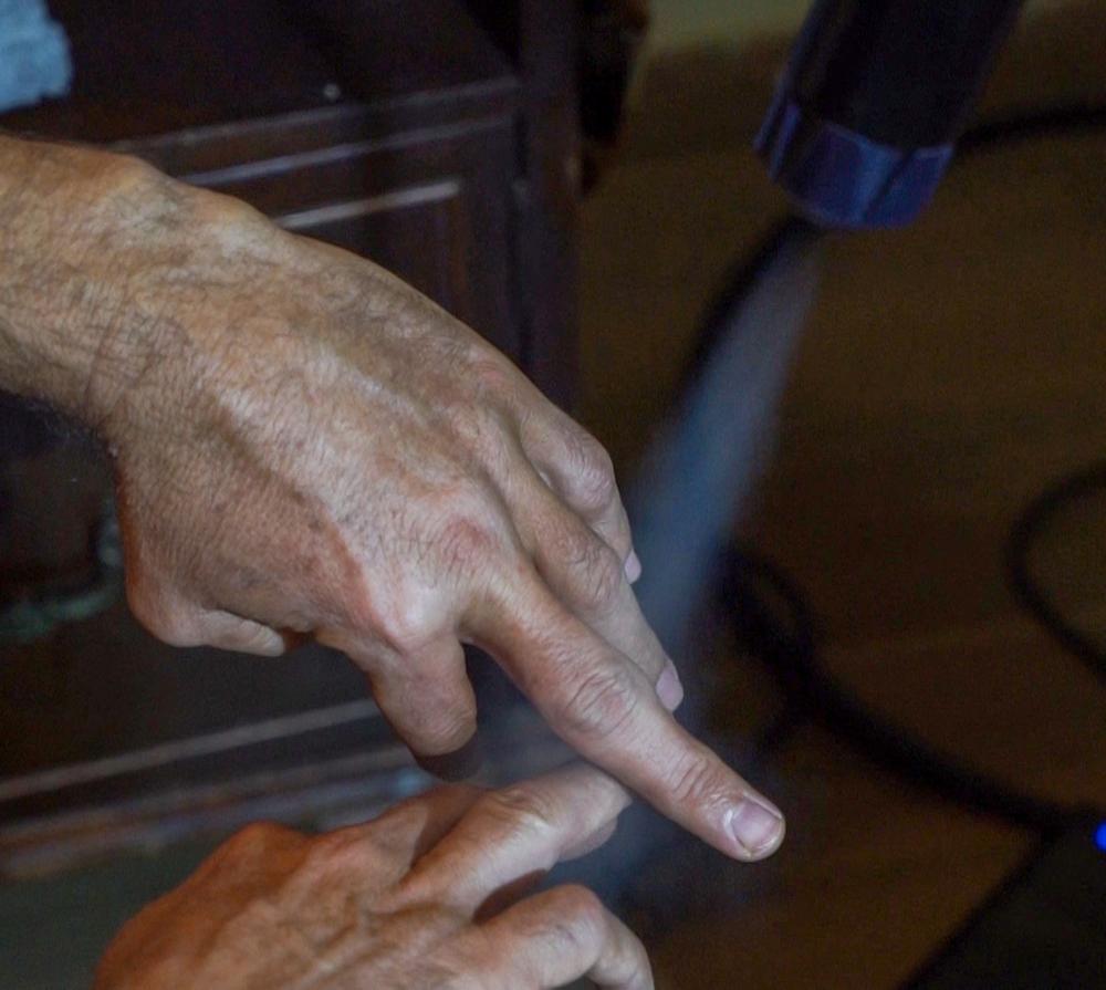 טיפול באצבע פגועה לאחר תאונה - זרנוק קפוא - קריותרפיה בחיפה - סאונת קור (צילום: ירון כרמי)