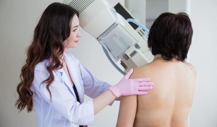 ממוגרפיה - סרטן השד (shutterstock)
